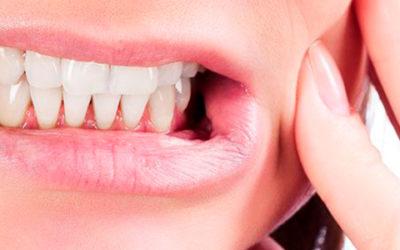 ¿Cómo saber si tienes sensibilidad dental?