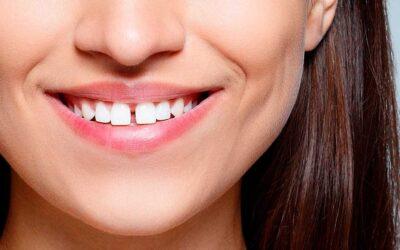 ¿Tienes los dientes separados? No te pierdas este post