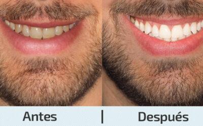 ¿Tienes los dientes amarillos y te gustaría blanquearlo? Sigue leyendo