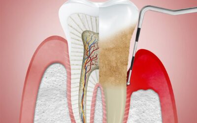 ¿Qué es la periodontitis y cómo prevenirla?