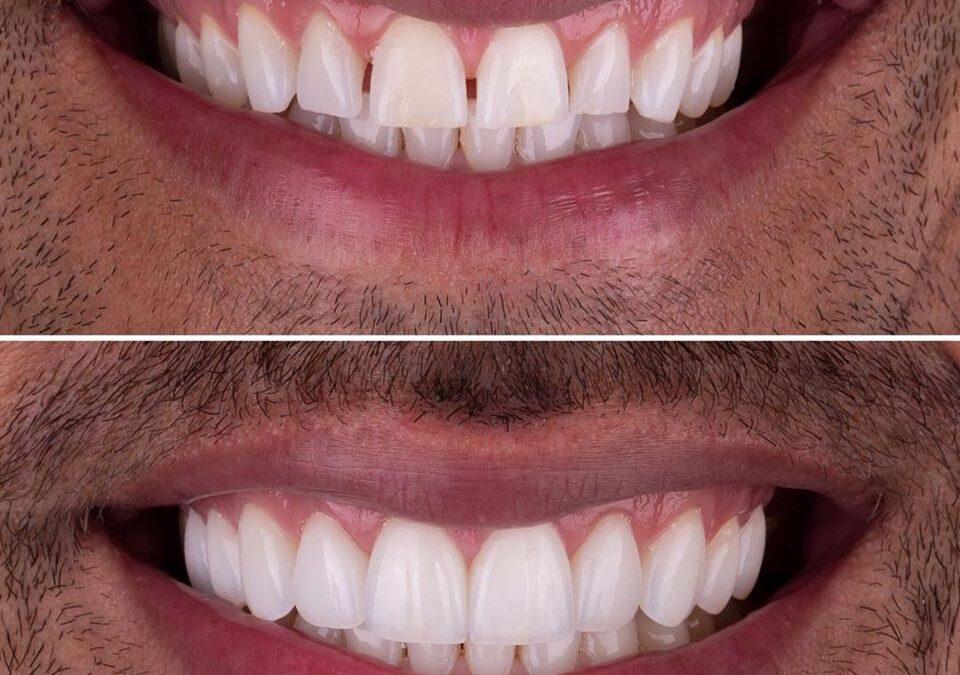 Las ventajas de las carillas dentales: 5 razones para ponértelas