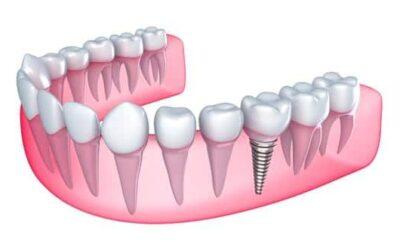 Implantes dentales. Preguntas frecuentes!